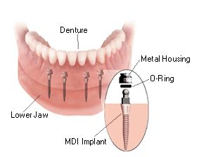 If you've done any sort of research on dental implants or dental implant surgery,   you've likely stumbled upon, or have been earnestly searching for the exact cost
