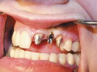 1 Mar 2005  In the anterior maxilla, there are advantages to uncovering a dental implant with   a tissue punch versus a small mucoperiosteal flap. The main
