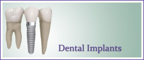 be different for you but when i was told i had to get a implant they told me it was   not covered under almost. What is the best medical and dental insurance?