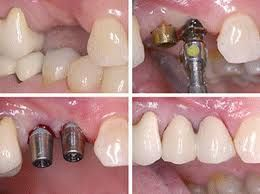 Kenkere Dental Implant Centre - Bangalore India| Implant Dentist Bangalore    Dentist Bangalore India | Low Cost Dental Implants Bangalore India | Good Root