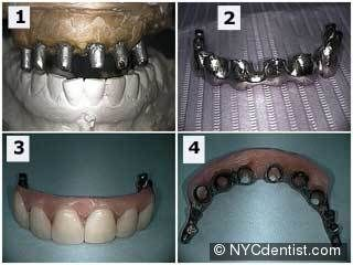 A minimally invasive second-stage procedure for single-tooth implants. Bernhart   T, Haas R, Mailath G, Watzek G. Department of Oral Surgery, Dental School,