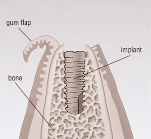 How long does the whole dental implant process take? . At this time, the top of   the implants will be uncovered from under the gums and a small metal post or
