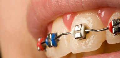 2 Who does not have to pay NHS dental charges? Exemption – England and   Wales. Patients do not have to pay any dental charges for a course of treatment if,