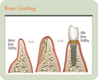 The costs of dental implants will vary depending on