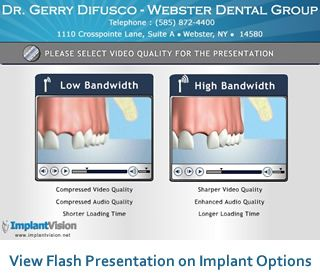 Dental Implants Webster Ny Find Local Dentist Near Your Area