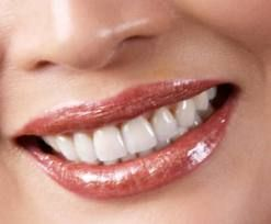 "Cosmetic dentistry is like a dental facelift that can quickly ""reverse"" the effects of   natural aging on the teeth. Many have unattractive teeth their whole lives and"