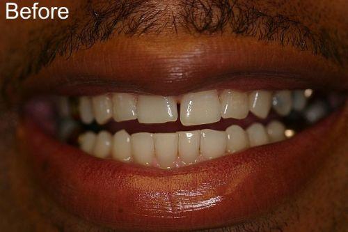Medicaid Dentist In Overland Park Ks Find Local Dentist