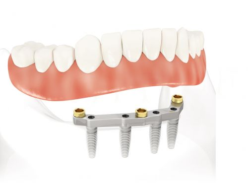 Choosing A Dental Implant Doctor  Dental Implant Cost  ClearChoice St.   Louis is located in the Creve Coeur area between Olive Blvd and Ladue Rd. We
