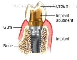 Dental implant surgery — Overview covers definition, risks, results of this   permanent tooth-replacement procedure.