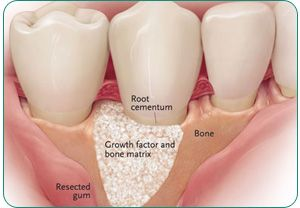 Implant dentistry has evolved and come to a full circle regarding the need of bone   grafting. In the early years of implant dentistry, bone grafting was extensively