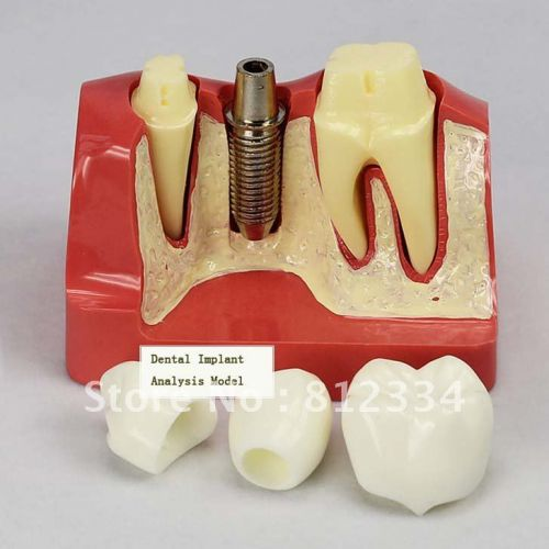 BIOMET 3i pioneered the development of biologically driven dental implants,   winning worldwide acclaim for the  North America united states Dental Implants