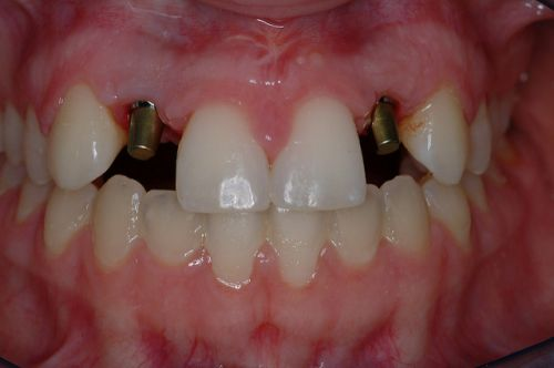 The upper teeth were all removed and 6 dental implants were placed. She was   temporized with an immediate temporary bridge, and following a healing period
