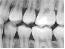 Visit MouthHealthy.org to find answers to all your dental-related questions so we    listed on this page, please visit the MouthHealthy.org page about X-Rays.