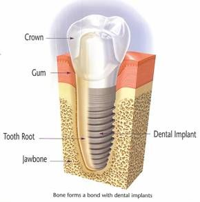 Definition of a bad day can be going to the dentist, and they inform you that you   need an implant, or worse multiple. Next they tell you that it will cost you about