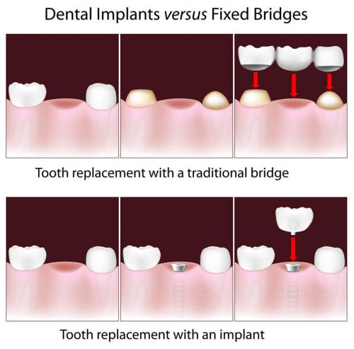 2 Dec 2011  Scroll down to get an idea about dental implants average cost.  The dental   implant procedure makes use of titanium screws that are fitted into