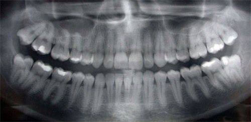Dental x-rays allow a dentist to detect dental cavities and other pathologies that   otherwise would go unseen. X-rays are quite safe, and the potential benefits far