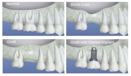 In this section, are stories and photo galleries of patients treated over the years   who required bone grafting for dental implants. Long term success of implants