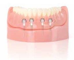 3m Espe Mini Dental Implants Find Local Dentist Near