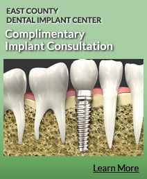 We are so confident that you will be totally satisfied with your renewed quality of   life, we guarantee our dental implant work for a lifetime. Our Same Day Teeth