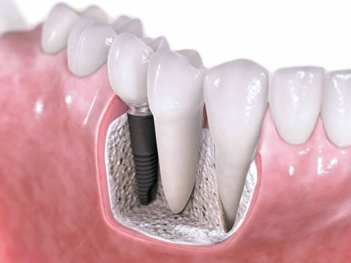 12 Apr 2010  Keywords: titanium materials, dental implant system, compatibility, surface .. For   millions of patients worldwide, MRI examinations provide