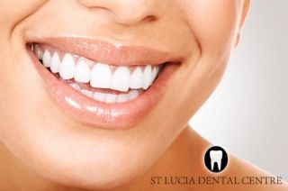 Teeth Whitening In Brisbane and Queensland. Dr David Cox - BDSc (Qld),   ClinAssoc (U Syd) - Smartbleach Laser and New Smartbleach 3LT David Cox   Dental