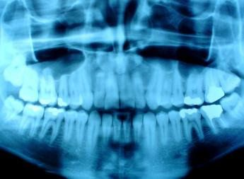 We are required by law to keep a patients original dental x-rays on file in our   office just as you would the patients dental records even if the