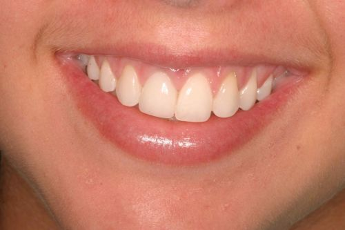 Before & After Photos of actual dental treatment