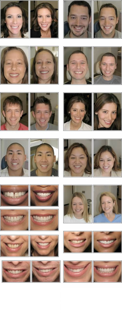 Sargon Dental Implants Immediate Tooth Replacement Los Angeles Dental   Implants  a brief one-hour dental appointment in dental office in Encino,   California.  is a free-standing implant with its own crown, just like any other   natural tooth.
