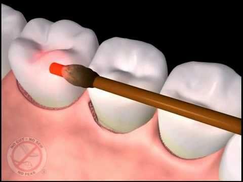 Dentists in Flagstaff AZ - Flagstaff Dentist Directory