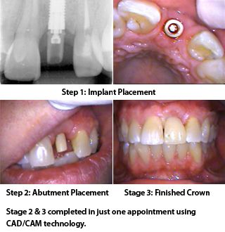 "Dental Implant ""Overdenture"" Basics – Dr. Ramsey Amin, Burbank, CA →  The   lower jaw is usually very dense which speeds up the time frame.  The   procedure chosen depends on several factors, such as your health, the number   of teeth"