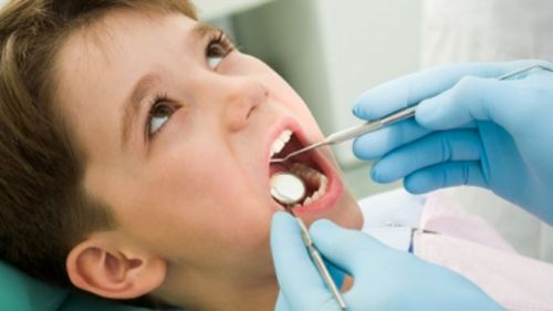 Medicaid covers extractions of the teeth, majority of