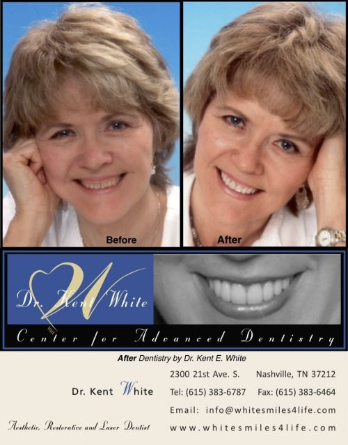 Vanderbilt Dental. Oral Health Home · Dental Clinic · Orthodontic Clinic · Oral   Surgery  After Hours/Weekends Dentistry:  Nashville, TN 37232. (615) 322-