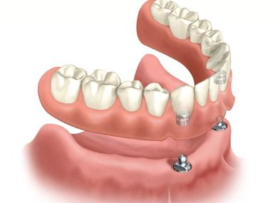 Plastic Surgery For Your Smile - Cosmetic Periodontal & Dental Implant   Specialists  a second stage implant uncovering procedure will be necessary in   order to