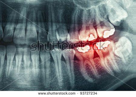 Панорамный снимок зубов сао