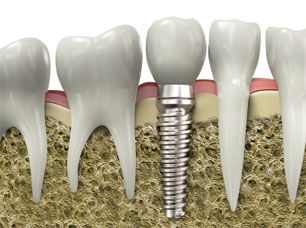 Dental implants can pose difficulties for an individual having an MRI (magnetic   resonance imaging), but do not automatically rule out undergoing the procedure,