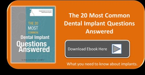 How Much Does a Dental Implant Cost? Fees from Dental Implants vary from   dentist to dentist. Always schedule an Implant Consultation to discuss the