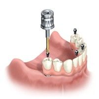 How difficult is the procedure, including recovery? I am scheduled to have this   done in a couple of weeks. Extractions, implants, teeth all in