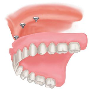 29 Dec 2011  Suffering from you upper denture moving around or gagging you? Then consider   mini dental implants if you have lost some bone and can't