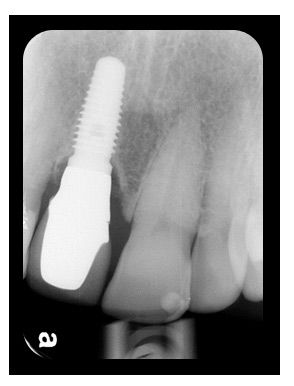 8 Aug 2011  Bone Loss Around Implants: Recommended Treatment Plan?  incisor; 12, 22]   supporting a 4-unit fixed partial denture replacing teeth #7-10.