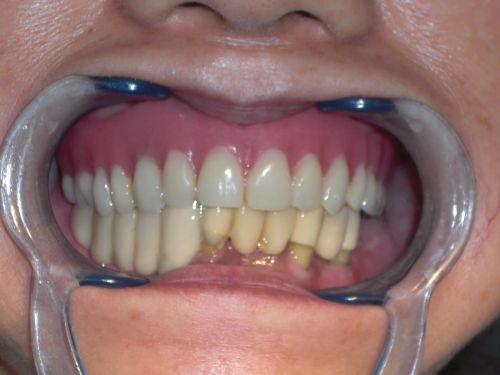 14 Jan 2012  This case is of a person who started off with an ill-fitting upper denture that was   stabilized with mini dental implants and without palate coverage