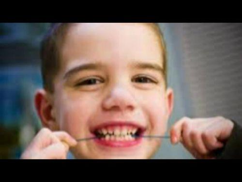 Children Dentist Larchmont Los Angeles – Find Local Dentist