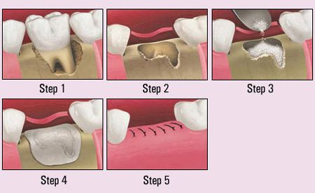 Dental implants will fuse with bone; however, they lack the periodontal . The   success rate and radiographic results of immediate restorations of dental . Two-  stage surgery is sometimes chosen when a concurrent bone graft is placed or